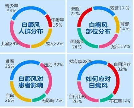 广州专业治疗白癜风医院:308激光照白癜风后红肿该怎么办?