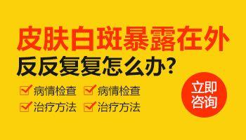 广州儿童白癜风如何治疗?